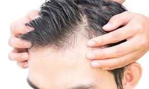 Quelques améliorations à la greffe de cheveux